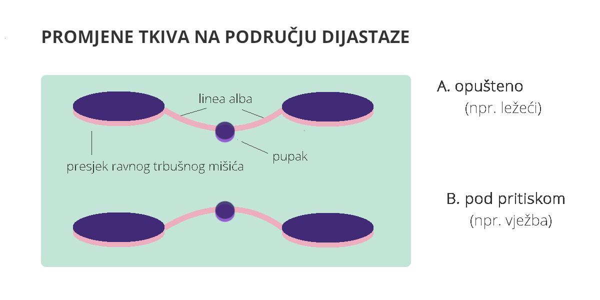 tkivo na mjestu dijastaze grafika