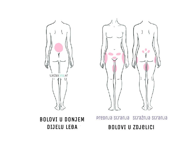 lokacije bolova u ledjima i zdjelici kod trudnica